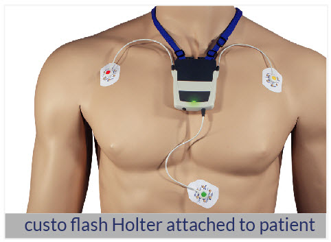 custo-med ECG HOLTER monitor attached to a patient